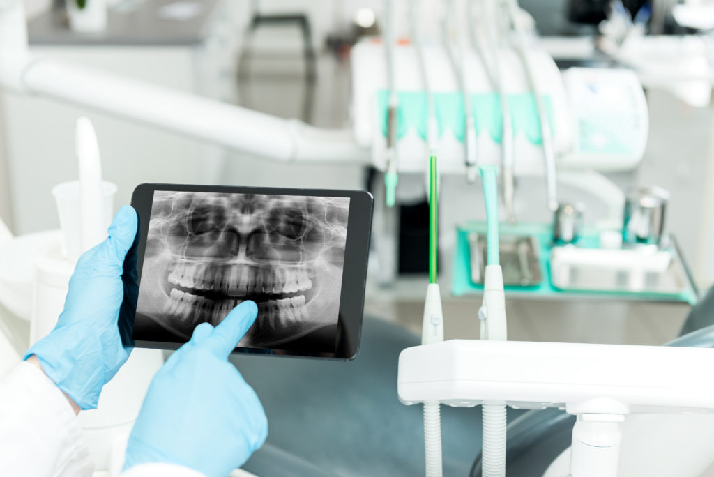 Dental radiogram on tablet