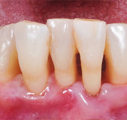 after periodontal