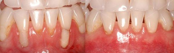 periodontal bone grafting