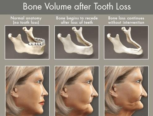 Periodontal Bone Loss