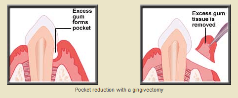 Periodontal gingivectomy