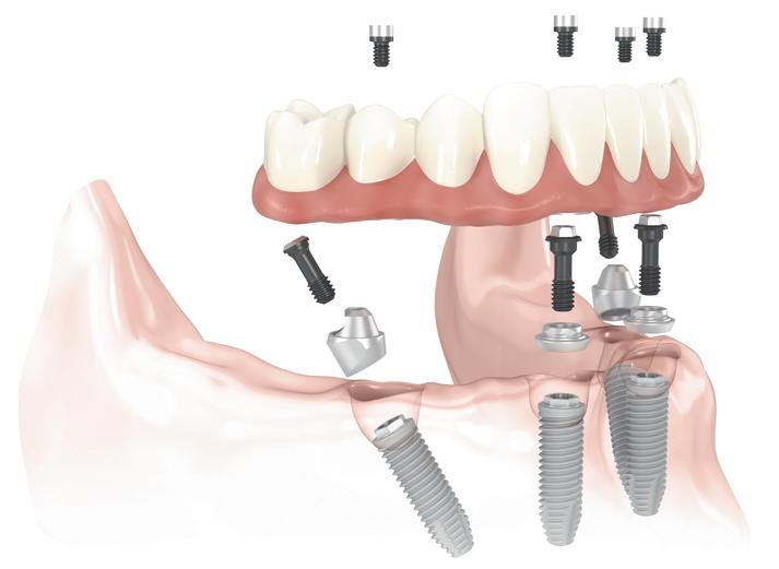 periodontal dental implants