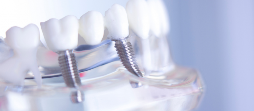 Dental Implant Miami Dentist